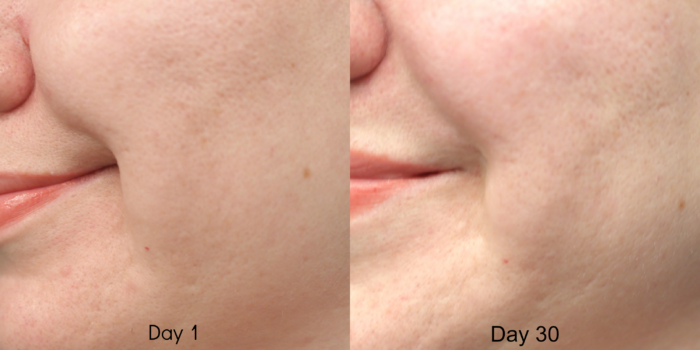 Nerium Cheek 30 Day Before and After